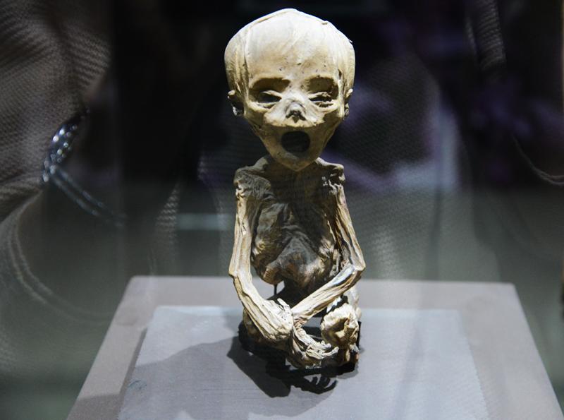 Mumifizierter Fötus.